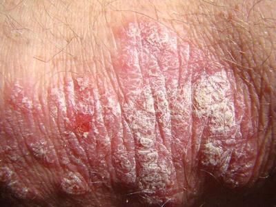 脸部牛皮癣的主要病因都有什么